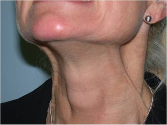 Dysport  treatment of neck Bands