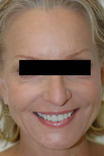 Dysport Injections Before and After Photos