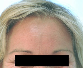 Dysport Injections Orange County Before and After