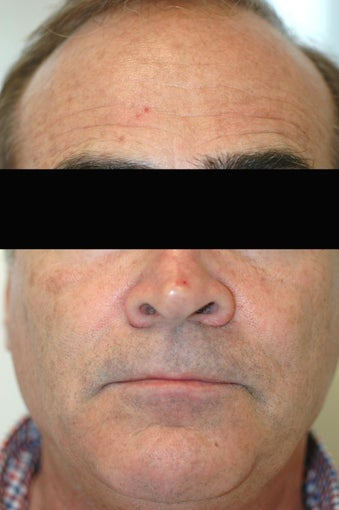 Dysport (Botox) for Forehead Wrinkles, Los Angeles, CA