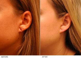 Earlobe Repair- left