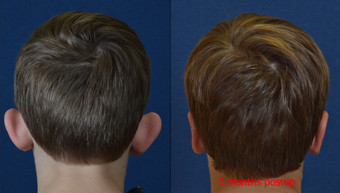 9 Year Old Male Child Treated for Prominent Ears