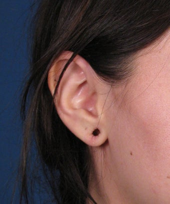 Earlobe Gauge Repair