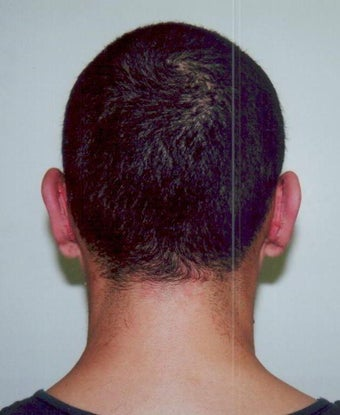 Otoplasty - Bilateral protruding ears