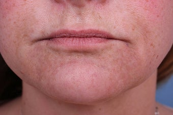 Evolence Collagen for Marionette Lines and Chin