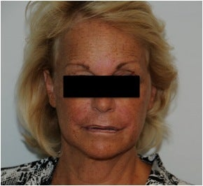 Evolence Injection in Glabella to Reduce Static Wrinkles