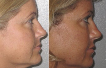 Non-surgical liquid eyelid lift