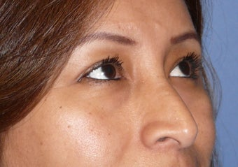 Transconjuctival lower eyelids.  No scar!