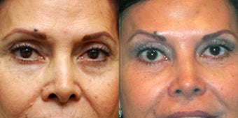Non Surgical Liquid Eyelid Lift