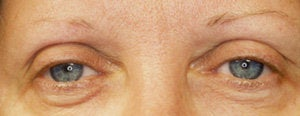 Endoscopic Browlift and Upper & Lower Blepharoplasty