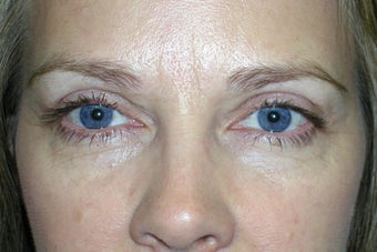 Ptosis Repair and Blepharoplasty