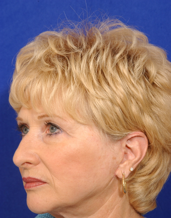Upper blepharoplsty with cheeklift, facelift
