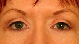 Upper Blepharoplasty (Upper Eyelids)