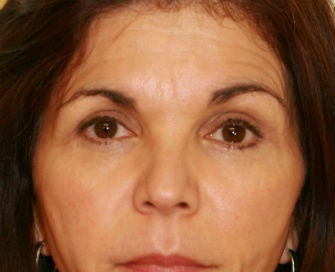 Lower eyelid blepharoplasty