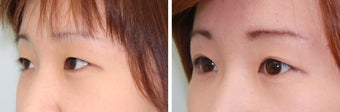 Double Eyelid Surgery - Suture Technique