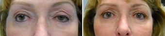 Left upper eyelid ptosis repair