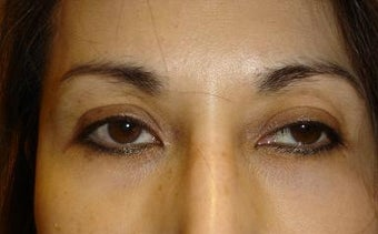 Upper Lid ptosis repair