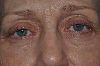 Bilateral upper and lower blepharoplasty, and 4 lid permanent eyeliner