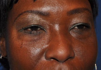 Blepharoplasty (Upper and Lower eyelids)
