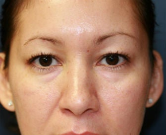 Upper and Lower Eyelid Blepharoplasty