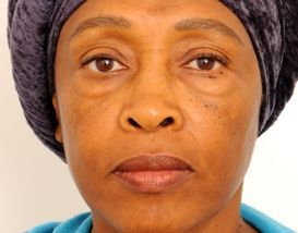 Lower Blepharoplasty (Lower Eyelids)