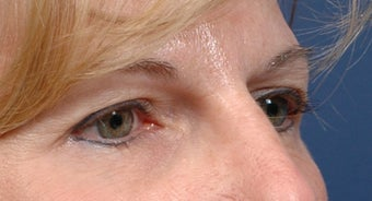 Endoscopic Browlift and Upper lid Blepharoplasty