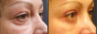 Upper & Lower eyelid surgery