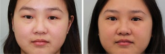 Double Eyelid (Asian Blepharoplasty) Incisional