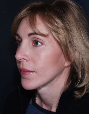 Laser used for cutting - Vertical Facelift