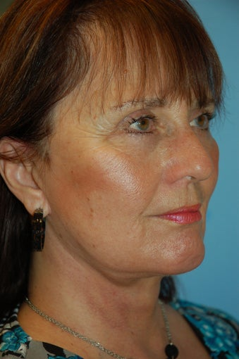 Facelift, Upper and Lower Blepharoplasty and Chin Implant
