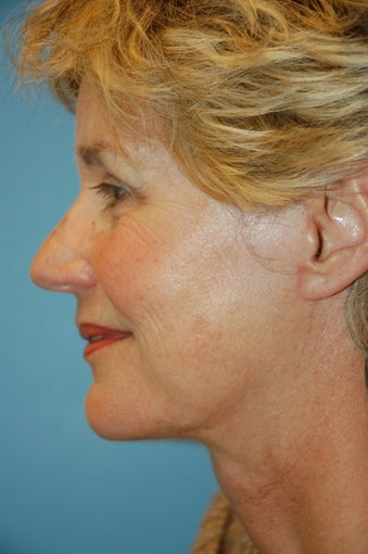 Facelift and Upper Blepharoplasty