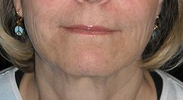 """Liquid facelift"" with filler"