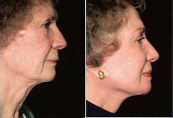 Facelift, lipo under chin, lower eyelids, endo forehead lift, laser