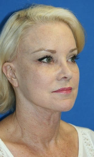Facelift with Extended Necklift, Browlift, Peri-orbital Fat Transfer, and Skin Pinch