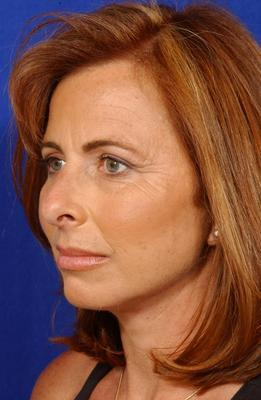 Face Lift, Neck Lift, and Upper Blepharoplasty
