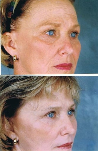 Revision facelift