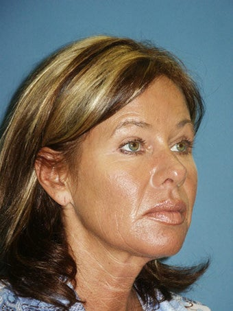 Facelift, Endoscopic Browlift, Upper and Lower Blepharoplasty