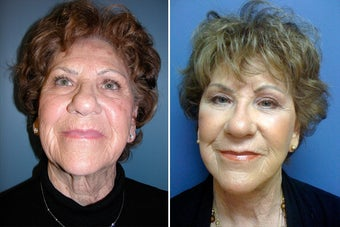 Facelift and periorbital Fat Transfer