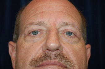 Face Lift and Lower Blepharoplasty