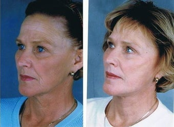 Facelift, Neck lift, Superficial cheek lift, CO2 laser resurfacing