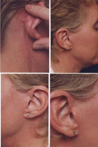 The no scar facelift incision