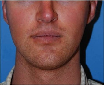 Jaw Implants for Jaw Augmentation