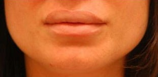 Corrective Lip Reduction