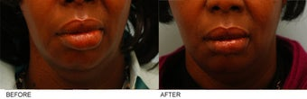 African-American Lip Reduction