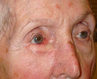Eyelid cancer reconstruction