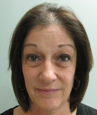 "Quadbleph ""eyelid lift"" with midface lift, botox and juvederm to forehead"