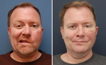 Facial Paralysis and Reconstruction