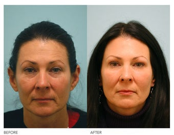 Fat Transfer and Facial Rejuvenation