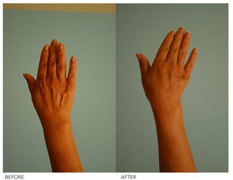 Hand Rejuvenation (with Fat Transfer)