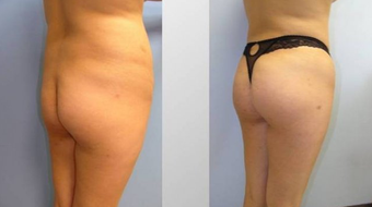 Butt Augmentation (Fat Transfer)